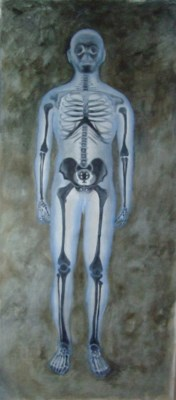 X-Ray Front